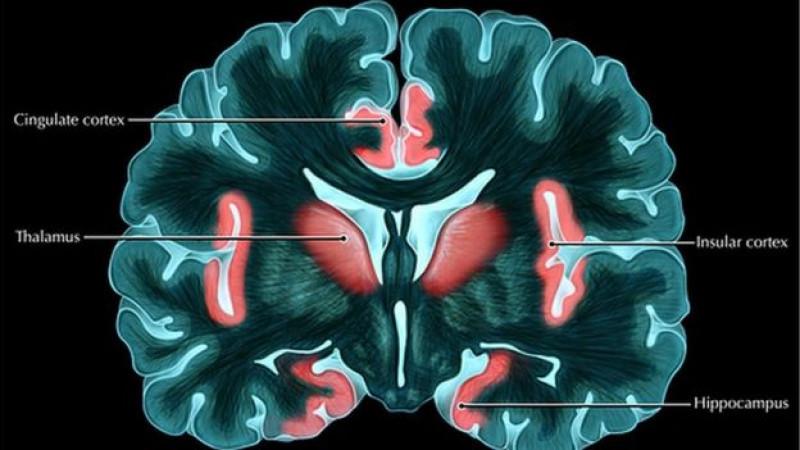 _92385378_c0249805-brain_response_to_pain-spl