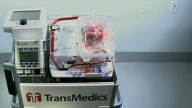 aparat transplant inima