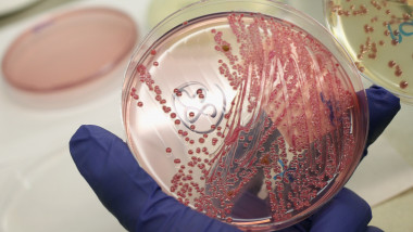E-1.Coli GettyImages-115051151