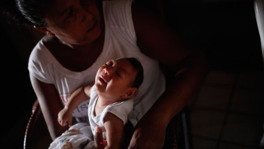 zika microcefalie copil - GettyImages-507783100