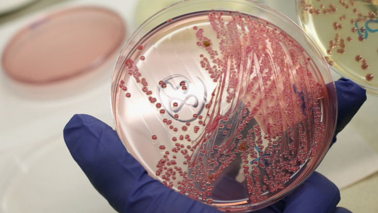 E.Coli GettyImages-115051151