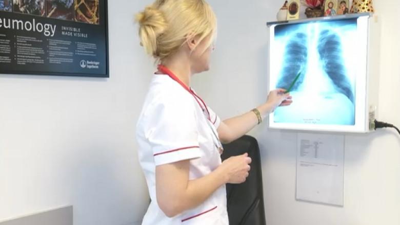 medic radiografie plamani