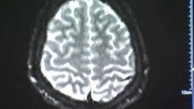 varsta creier
