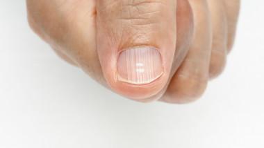 Micoza unghie mana