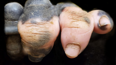 gorila-anaka-vitiligo