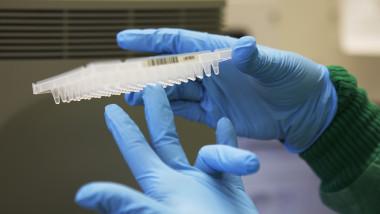 Test ADN.