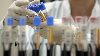 Israeli Laboratory Leads Western World In Blood Testing