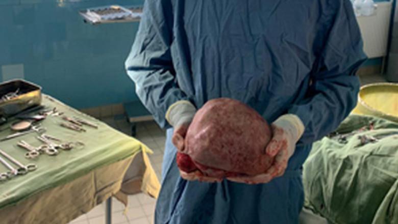 tumora crop