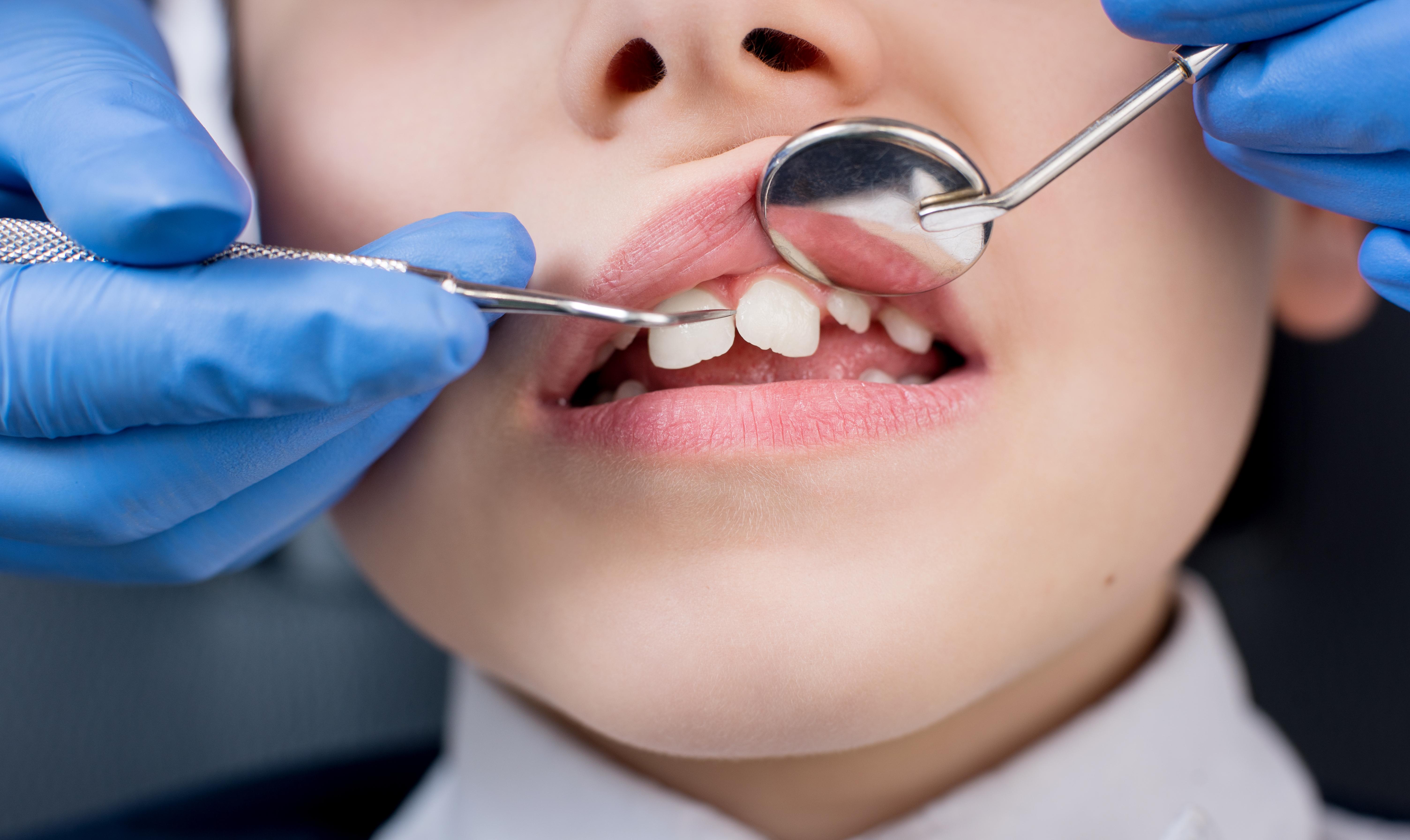 Şase cabinete stomatologice şcolare, unul pentru fiecare sector, s-au redeschis in Bucuresti