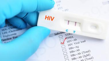 Test pozitiv pentru HIV