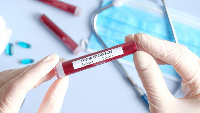 laborator analize coronavirus