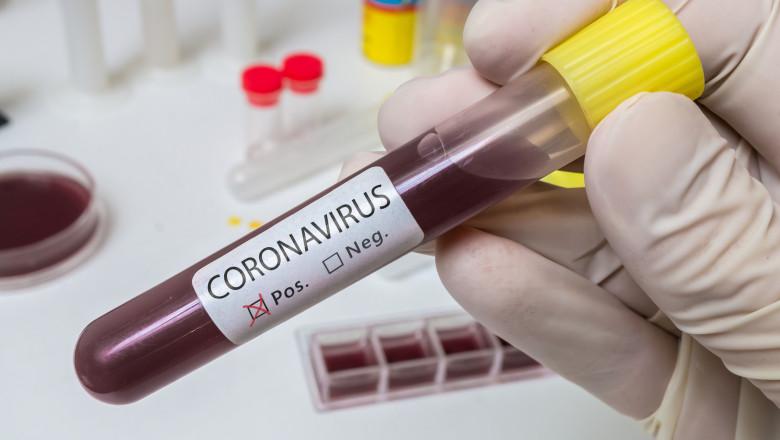 Hand holds test tube for Coronavirus 2019-nCOV analysis.