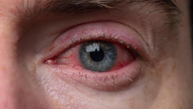 conjunctivită, ochi rosii