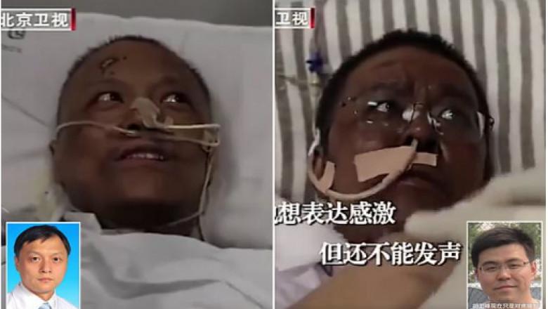 wuhan-doctors-critically-ill-of-covid-19-found-their-skin-turn-dark