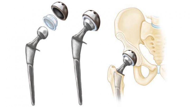 durere după endoproteze tb articulație