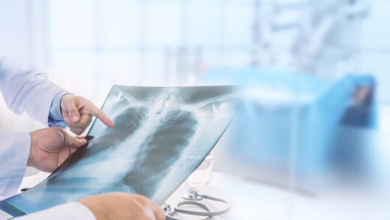 Un medic examineaza o radiografie pulmonara