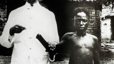 copil cu manata taiata in Congo colonial