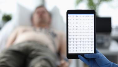 monitorizare a inimii prin ekg