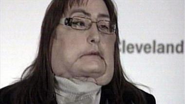 prima femei care a beneficiat de un transplant de față