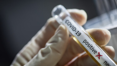 Doctor hands holding a coronavirus COVID-19 positive test tube