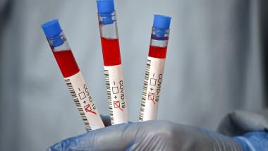 profimedia-coronavirus test