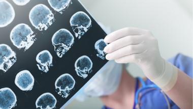Neuro_medical