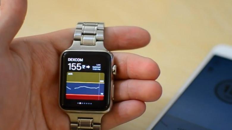 apple watch diabet