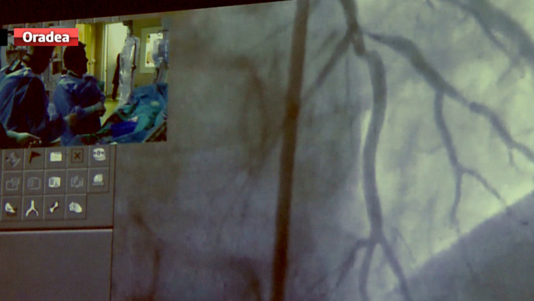 operatii bisturiu