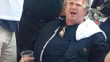 Zeljko Kerum ham on forehead. Photo Reader of 24 sata 640