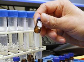 University of Utah Researchers Work Toward Cure For Ebola Strains