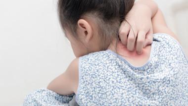 fetita alergii bebelusi_shutterstock_672396595