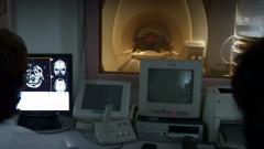 spital oncolog