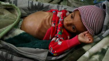 copil inanitie yemen_captura bbc