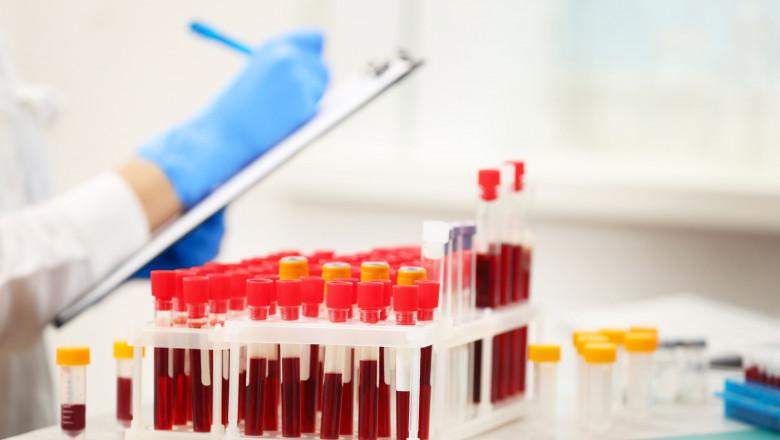 analize teste sange probe shutterstock_583458352