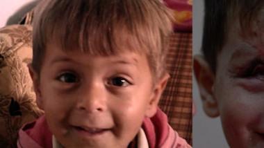Joouma, copil sirian mutilat după un atac aerian
