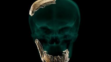 profimedia-Nesher Ramla craniu 3d
