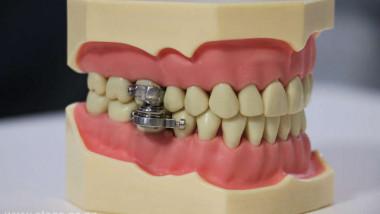 Dispozitiv de blocare a gurii.