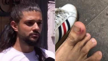 Un tânăr arată că a fost mușcat de șobolan, de picior.