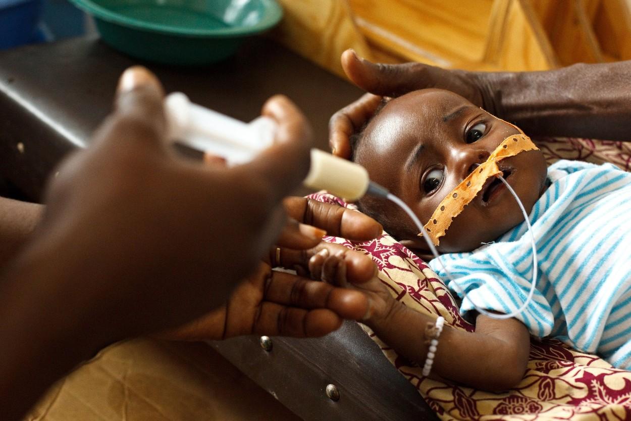 Peste 100.000 de copii sunt aproape de a muri de malnutritie severa, in regiunea Tigray, sfasiata de razboi civil
