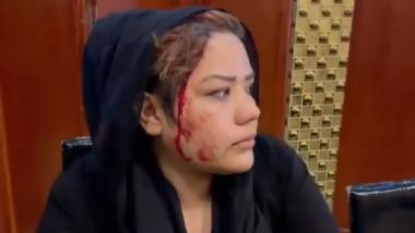 femeie-batuta-talibani-twitter