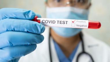 profimedia-coronavirus-1-1536x1024