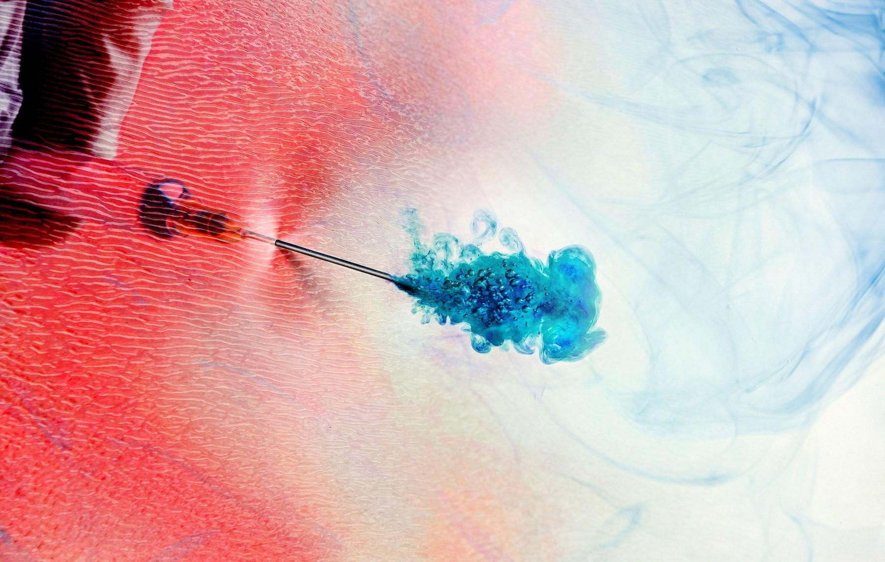 Cercetatorii din Olanda au dezvoltat o metoda de a face injectie fara ac. Frica de ac, mai obisnuita decat se crede