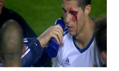 Ronaldo sange