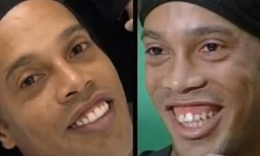 dintii lui ronaldinho