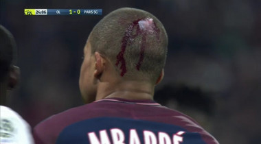 Mbappe accidentare