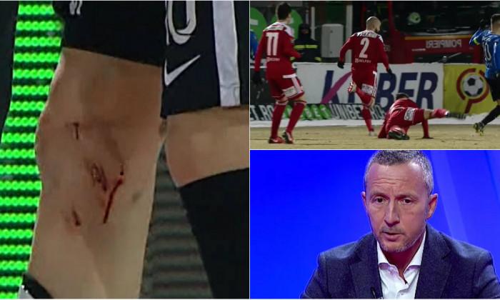 Cum arată piciorul lui Ianis Hagi, după faultul comis de Viera. Și MM Stoica a reacționat
