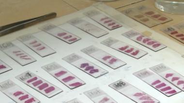 hiv samples