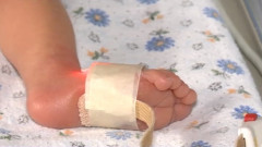 picior copil spital
