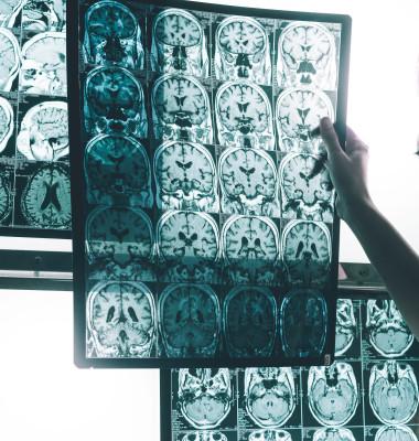Alzheimer main