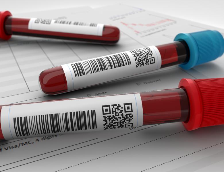 test de sange